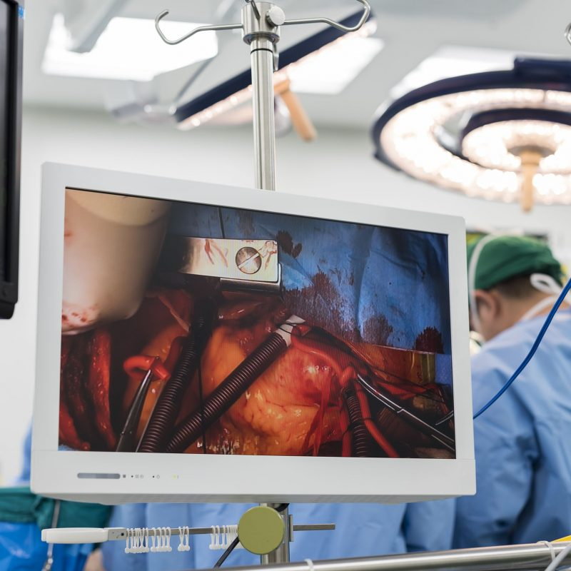 Video monitor showing heart surgery; surgical staff in background